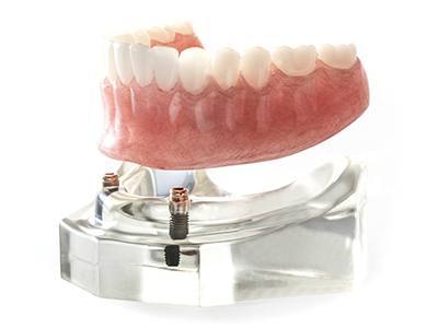 implant-assisted denture model